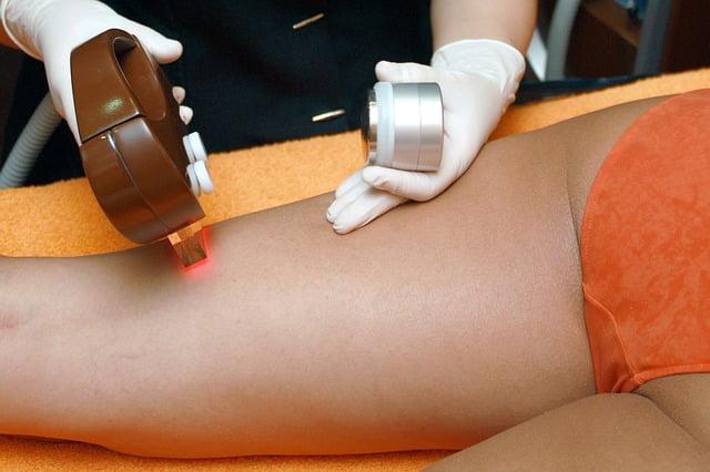 metodi depilazione
